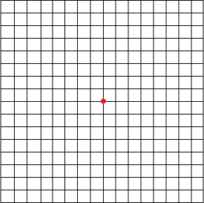 Amsler Grid from Piedmont Retina Specialists